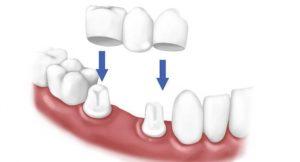 Установка коронок и мостов в стоматологии Фортуна