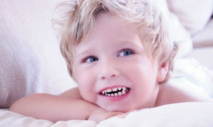 Коронки на зубы детям. Нужно ли бояться?