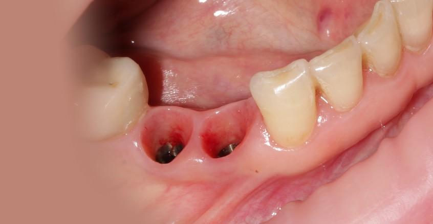 Имплантация зубов Харьков, имплант зуба цена, имплантация зубов отзывы, импланты зубов, протезирование на имплантах, протезирование все на 4, экспресс имплантация , имплантация зубов Фортуна, имплантация зубов под наркозом, имплантация зубов во сне, эстетическое протезирование, полное протезирование на имплантах