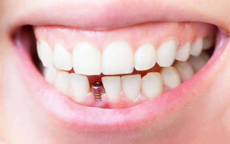Какой зубной имплант выбрать?