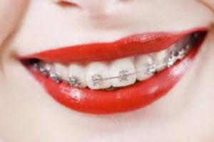 Ортодонтия. Почему она работает?