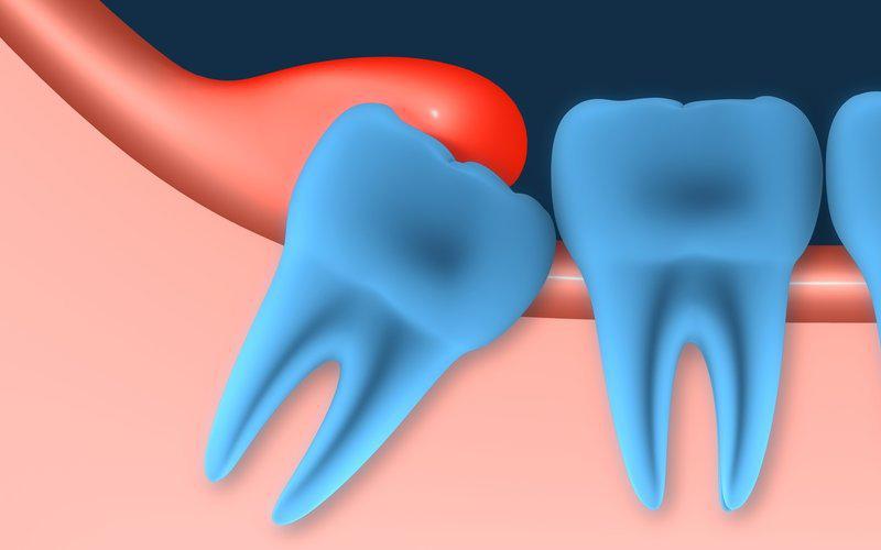 можно ли поставить виниры без зубов
