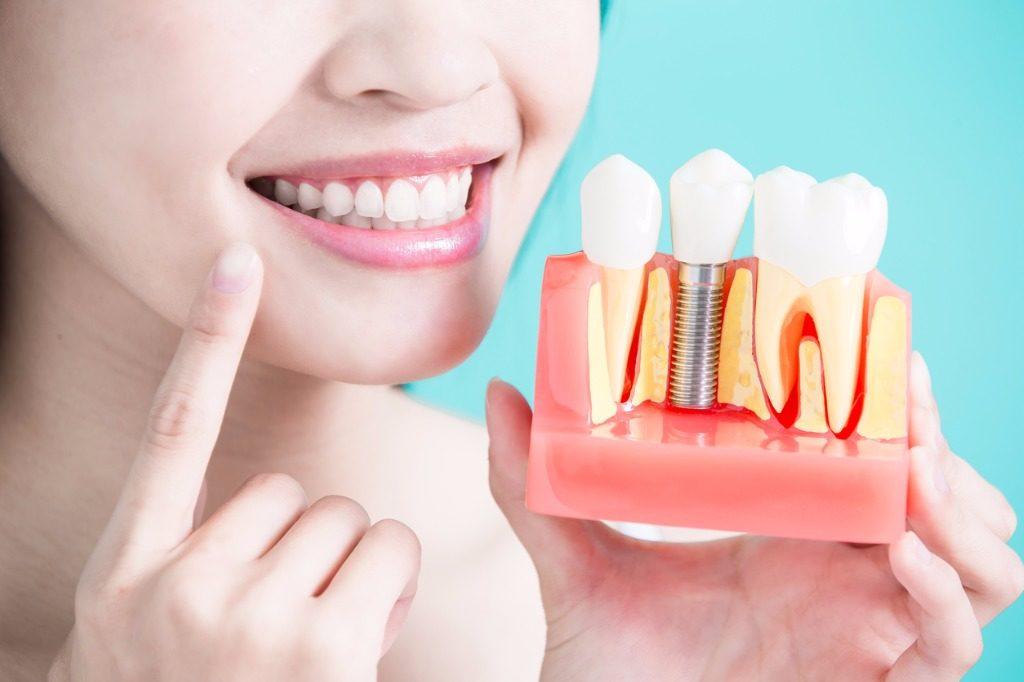Имплантация зубов в Харькове по доступной цене