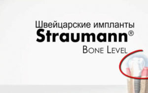 Импланты Штрауман. Швейцарское качество как показатель надежности