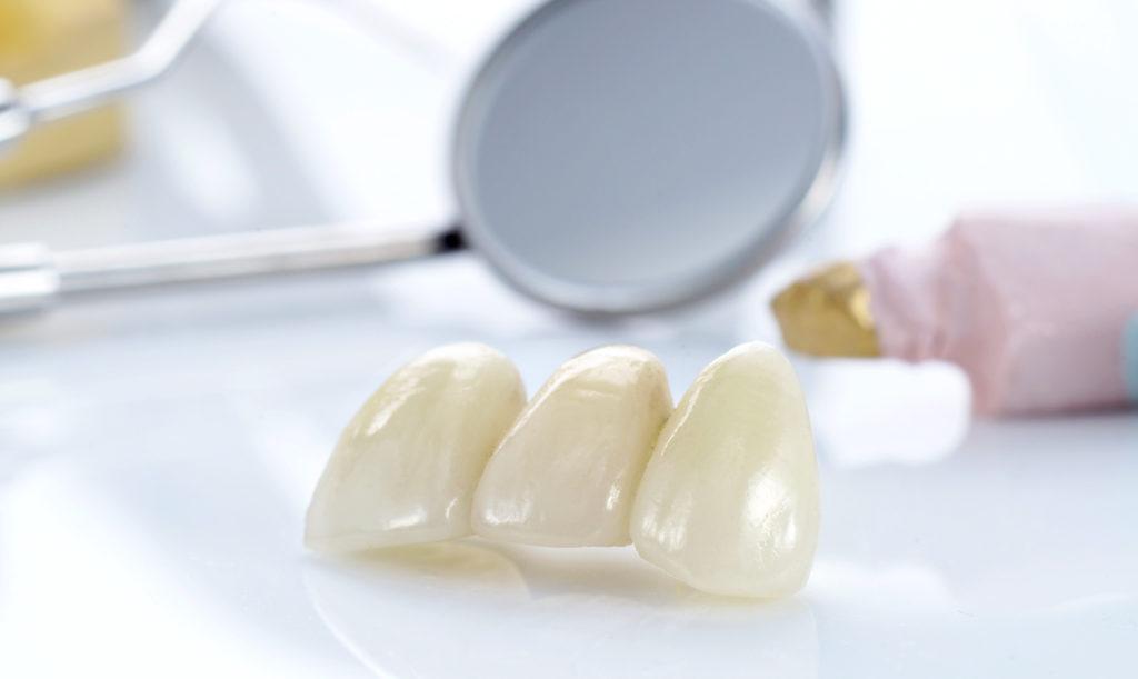 Установка коронок на зубы в Харькове