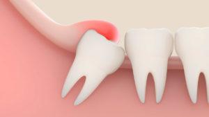 Лечение и удаление зубов мудрости в Харькове