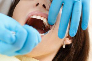 Удаление зубов в Харькове