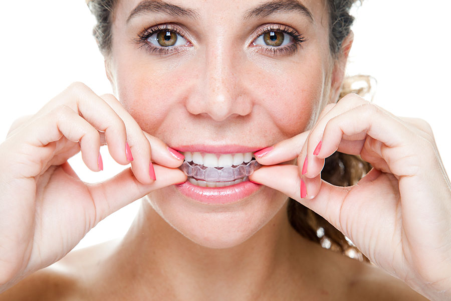 Выравнивание зубов элайнерами в Харькове