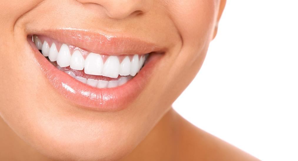 Протезирование зубов на имплантах в Фортуне