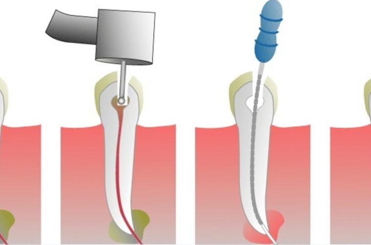 Болит зуб после удаления нерва. Что делать?