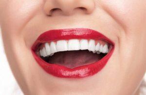 Коронка на зуб или имплант. Как сделать правильный выбор?