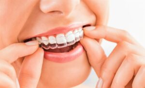Элайнеры для выравнивания зубов. Плюсы и минусы
