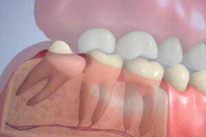 Болит зуб мудрости. Можно ли обойтись без удаления?