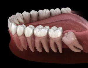 Почему нужно удалять зачатки восьмых зубов?